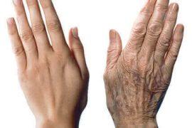 Ellerin yaşlanmasını önlemek için öneriler