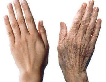 Ellerin yaşlanmasını önlemek için pratik öneriler